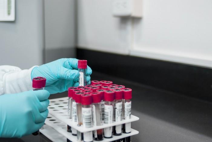 Počet nakažených novým koronavirem stoupl v Česku na 32