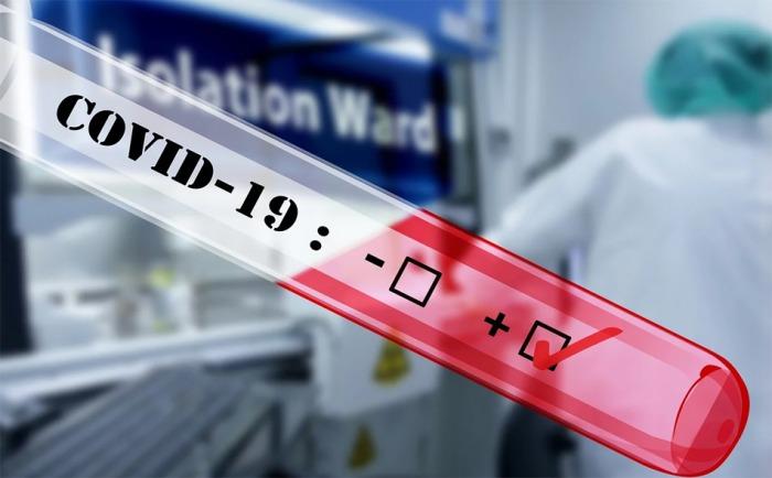 Plicní lékaři žádají o právo poslat pacienty na vyšetření na koronavirus. Lidé s dýchacími potížemi totiž chodí rovnou za pneumology