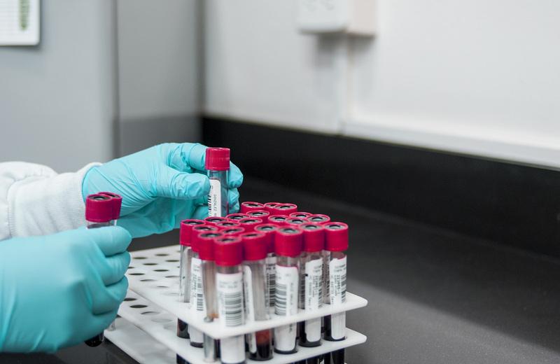 Náklady VZP na léčbu hemofilie meziročně stouply o téměř 100 miliónů korun
